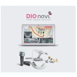 مزایای رقابتی دندانپزشکی دیجیتال چیست؟