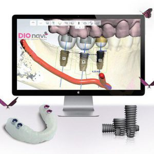 دندانپزشکی دیجیتال چیست؟