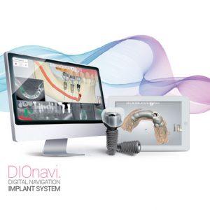 مزایای ایمپلنت دیجیتال دندانی