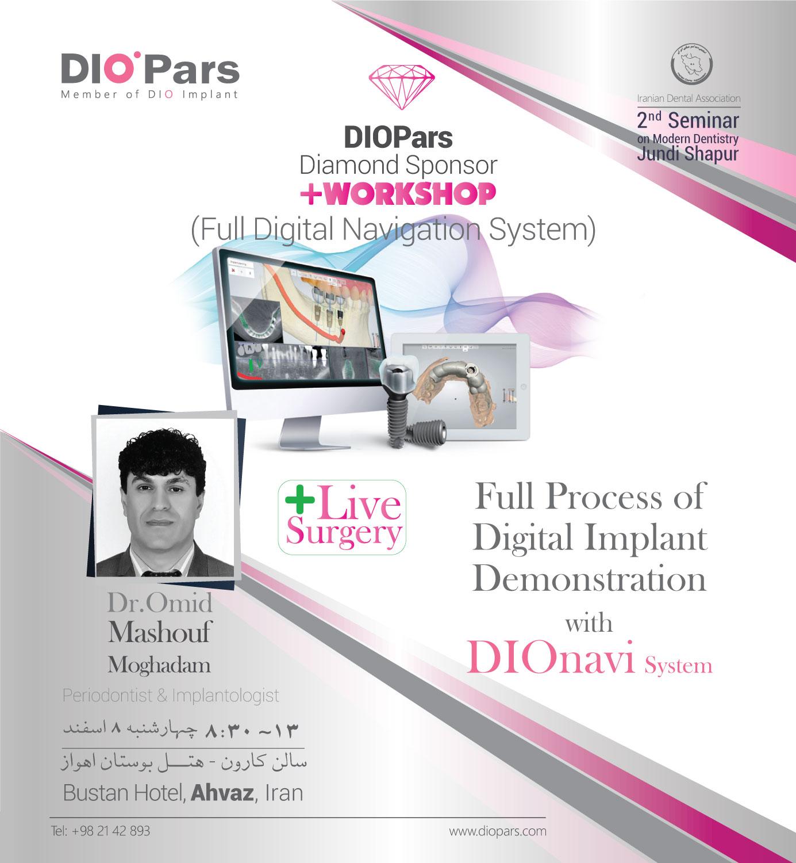 پری کنگره دومین سمینار دندانپزشکی جندی شاپور Full Digital Implantation With DIOnavi in just 1 Day