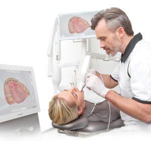 اسکنر داخل دهانی چیست؟