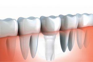 گزینه های درمانی ایمپلنت برای جایگزین کردن دو یا چند دندان از دست رفته